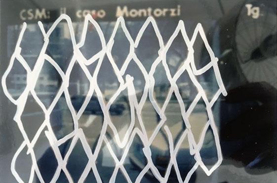 Mario Schifano – CSM, il caso Mantozzi